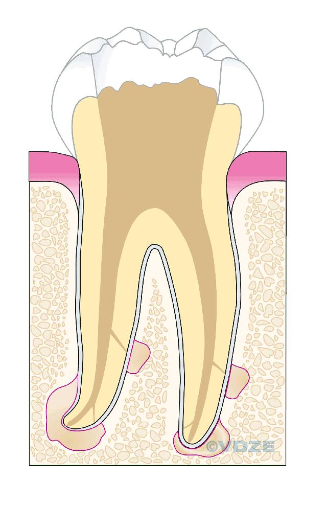 Wurzelkanal-Desinfektion