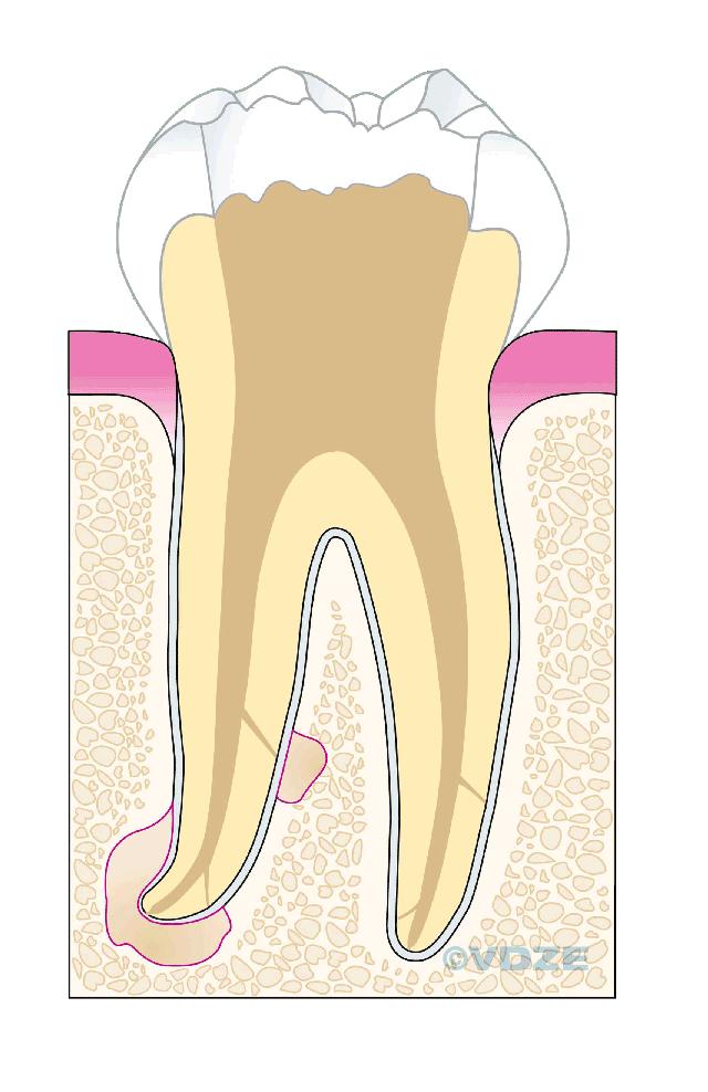 Nach grau verfärbt zahn wurzelbehandlung sich Zahn wird