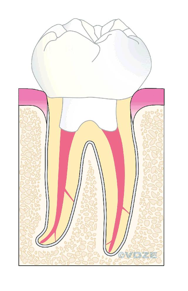 überkronter Zahn